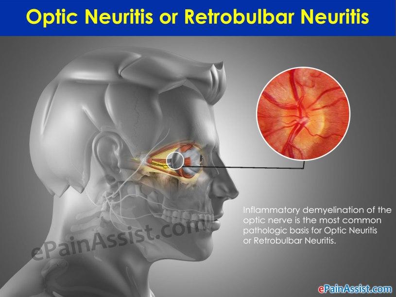 optic-neuritis